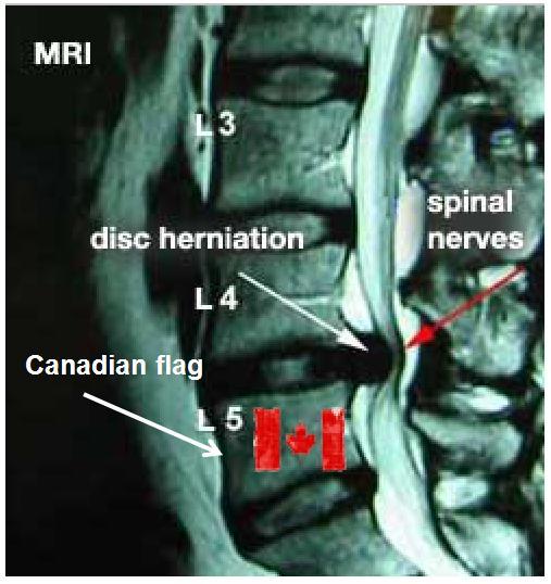 MRI_2